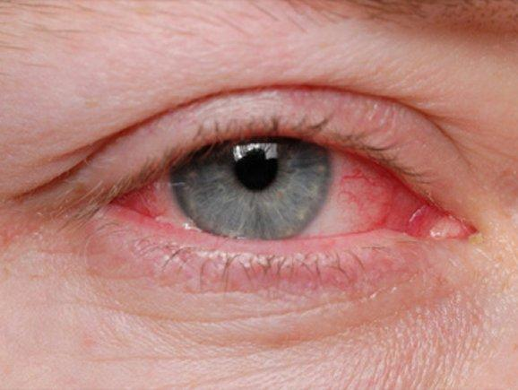 Conjunctivitis in Adult